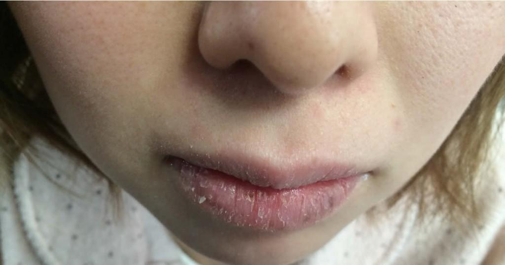 唇がガサガサで見るも痛々しい女性